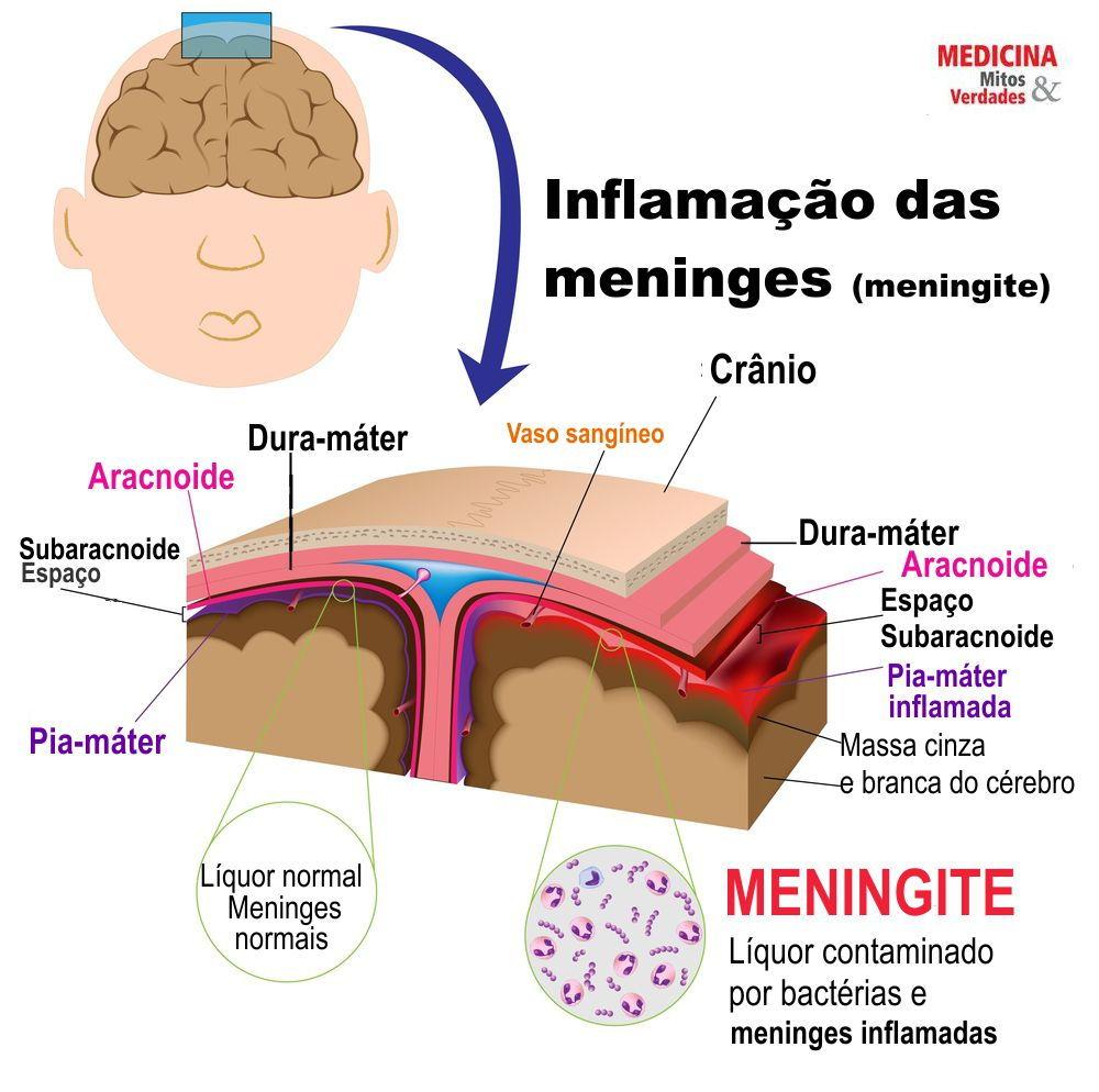 384-meningite-e-a-inflamacao-das-meninges